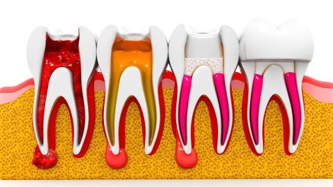 Does root canals cause cancer
