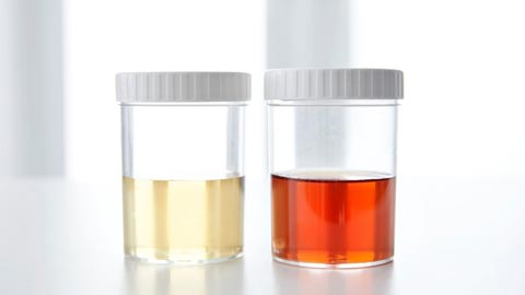 blood in the urine medical term